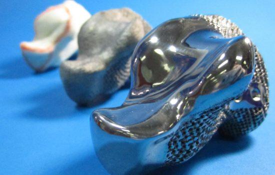 CSIRO and Anatomics produced this titanium heel bone implant using CSIRO's state-of-the-art Arcam 3D printer. Image courtesy Anatomics.