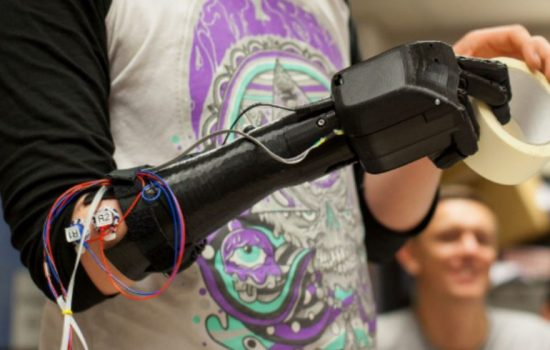 A 3D printed prothesis developed by Open Bionics. Image courtesy of Open Bionics.