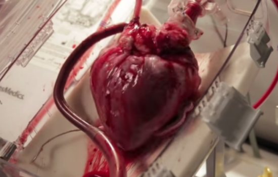 A new device is helping to save lives by reviving hearts after a patient's death - image courtesy of Transmedics