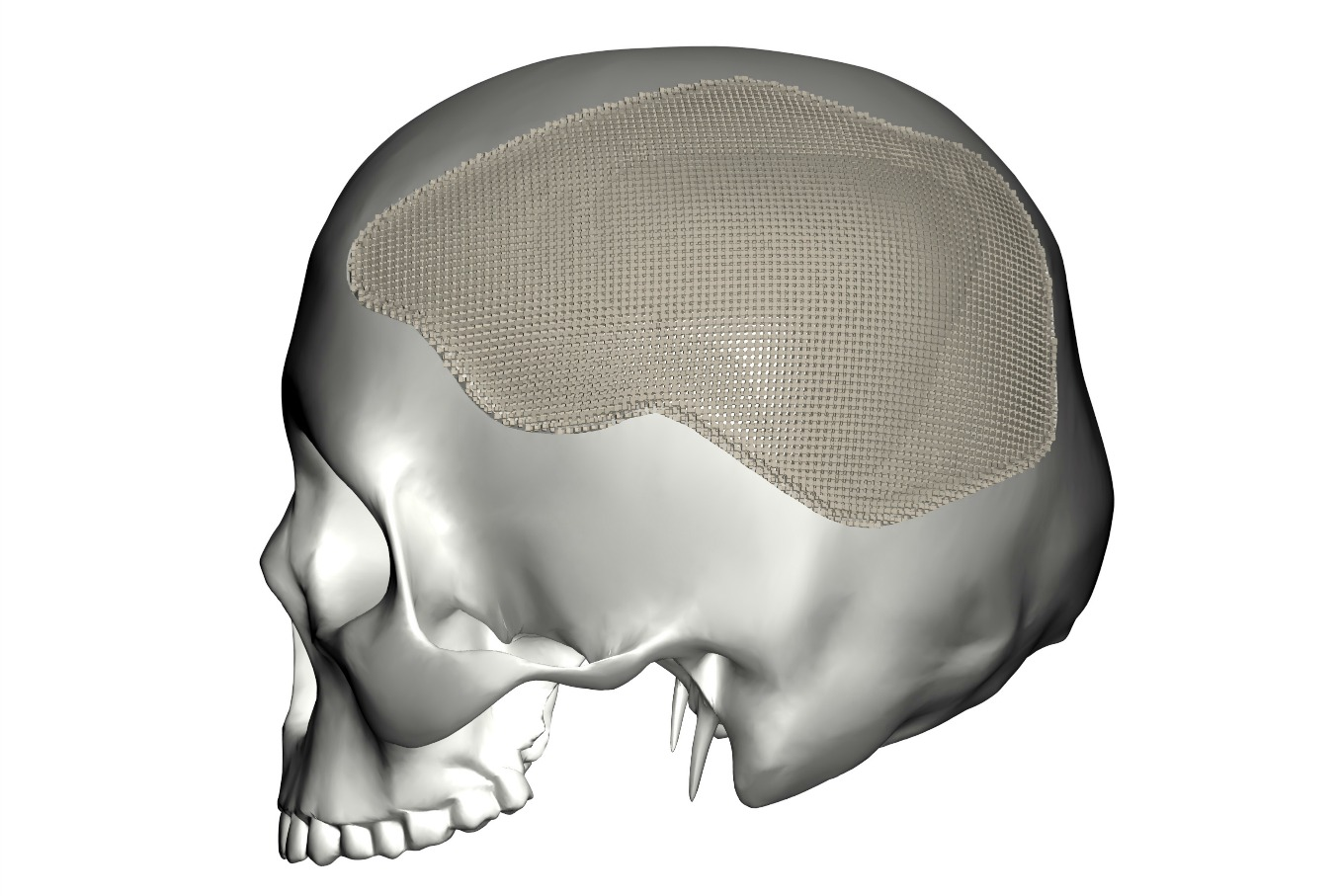 Within_cranial_implant-15