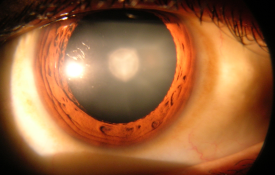 A cataract in a human eye which could be a candidate for this new cataract treatment - image courtesy of By Rakesh Ahuja, MD.
