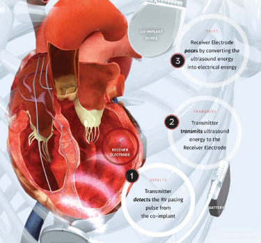 A diagram of the EBR Systems wireless pacemaker technology implanted in a heart - image courtesy of EBR Systems.