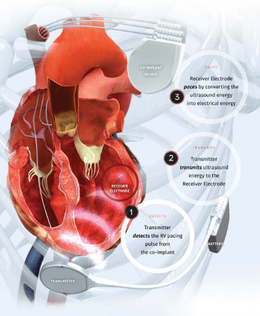 A diagram of the EBR Systems WiSE (Wireless Stimulation Endocardially) Technology implanted in a heart - image courtesy of EBR Systems.